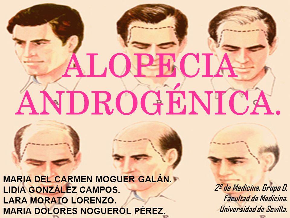 ALOPECIA ANDROGÉNICA. 2º de Medicina. Grupo D. Facultad de Medicina. Universidad de Sevilla. MARIA DEL CARMEN MOGUER GALÁN. LIDIA GONZÁLEZ CAMPOS. LAR