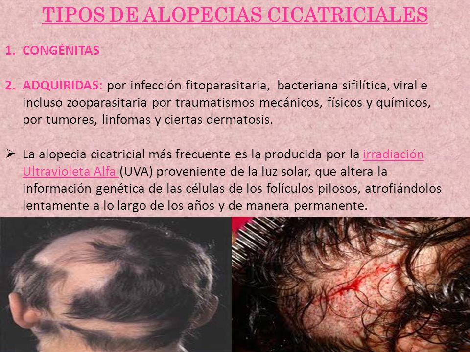 TIPOS DE ALOPECIAS CICATRICIALES 1.CONGÉNITAS 2.ADQUIRIDAS: por infección fitoparasitaria, bacteriana sifilítica, viral e incluso zooparasitaria por t