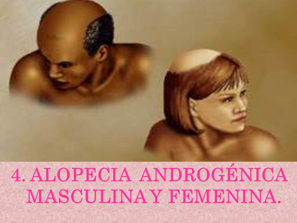 4. ALOPECIA ANDROGÉNICA MASCULINA Y FEMENINA.