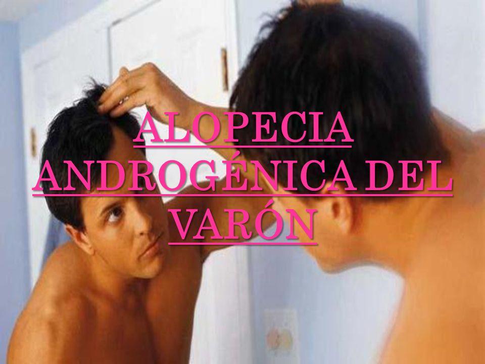 ALOPECIA ANDROGÉNICA DEL VARÓN