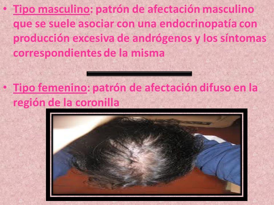 Tipo masculino: patrón de afectación masculino que se suele asociar con una endocrinopatía con producción excesiva de andrógenos y los síntomas corres