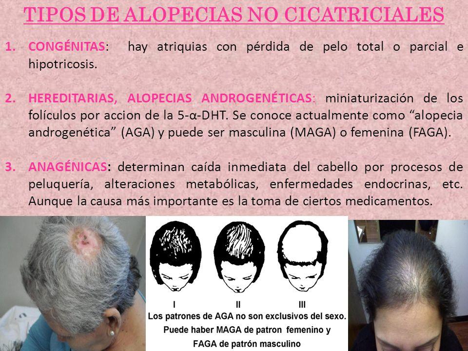 TIPOS DE ALOPECIAS NO CICATRICIALES 1.CONGÉNITAS: hay atriquias con pérdida de pelo total o parcial e hipotricosis. 2.HEREDITARIAS, ALOPECIAS ANDROGEN
