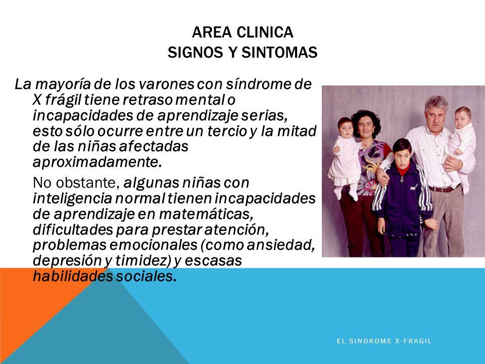 AREA CLINICA SIGNOS Y SINTOMAS La mayoría de los varones con síndrome de X frágil tiene retraso mental o incapacidades de aprendizaje serias, esto sól
