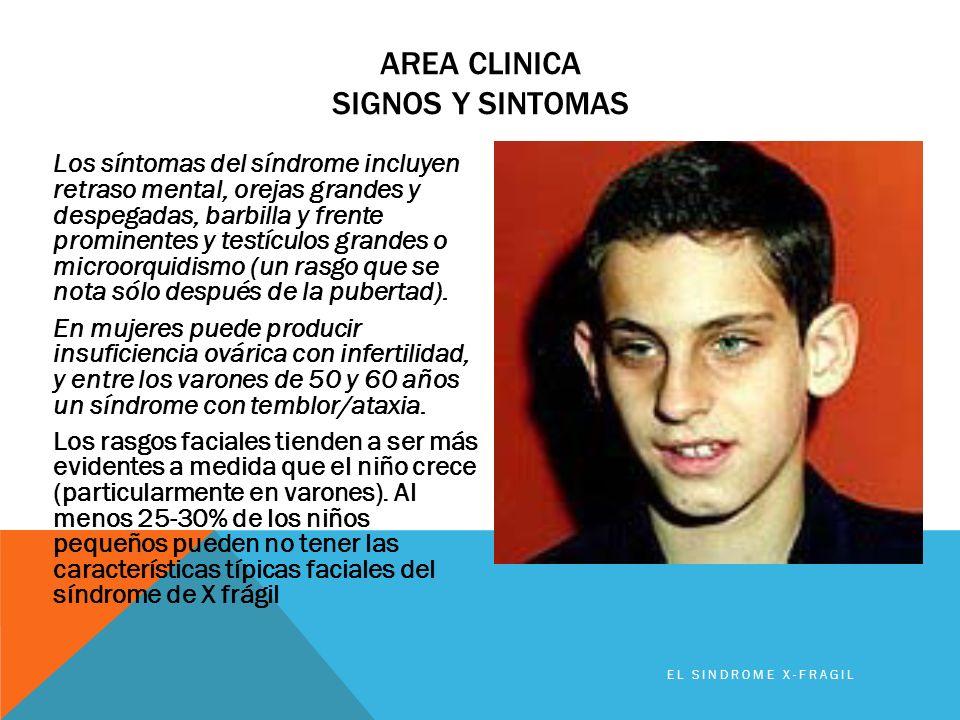 AREA CLINICA SIGNOS Y SINTOMAS Los síntomas del síndrome incluyen retraso mental, orejas grandes y despegadas, barbilla y frente prominentes y testícu