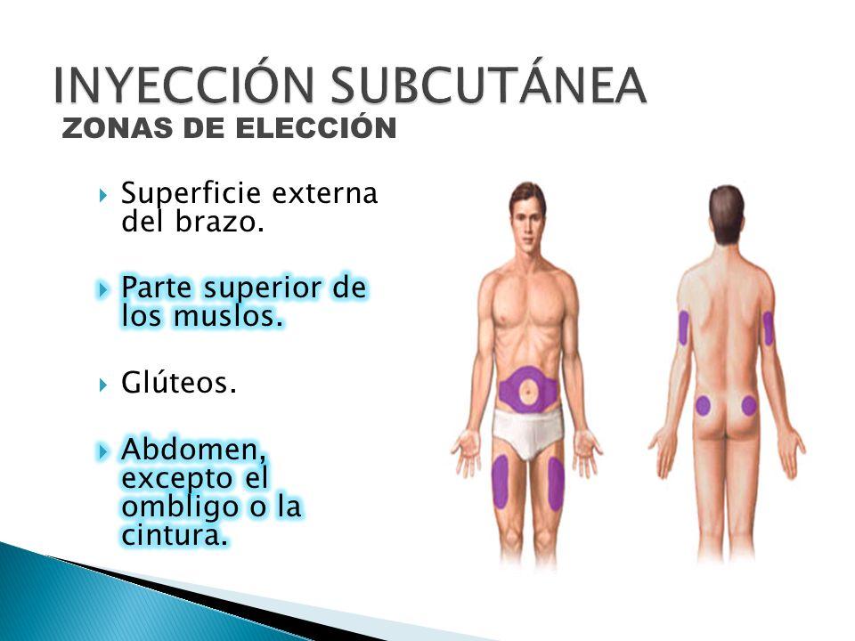 ZONAS DE ELECCIÓN