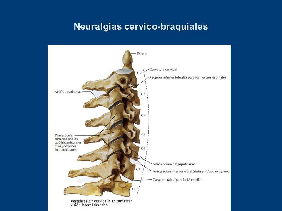 Neuralgias cervico-braquiales Neuralgias cervico-braquialesAutor Ouyang Qun 1993 [48742] Tipo de estudio Número de pacientes EA 156Resultados TEG: 94% Curaciones: 49%Puntos 1 a 4 puntos paravertebrales, a 1,5 centímetros de la línea media.Protocolo Acupuntura manual < 1 minuto.