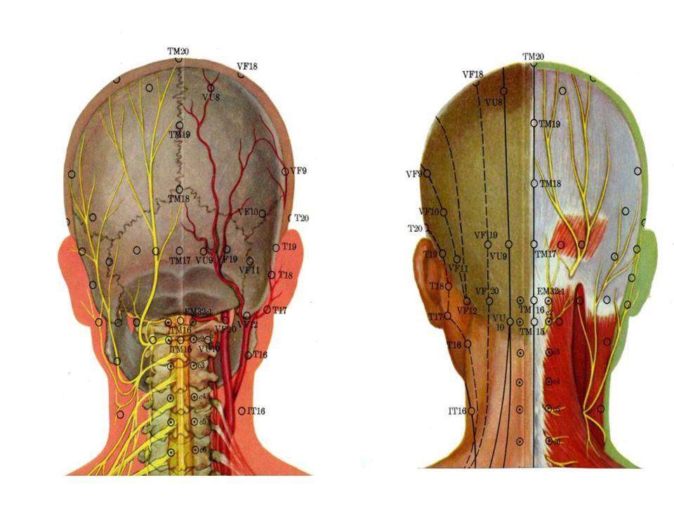 OBSERVACIÓN DEL EFECTO TERAPÉUTICO DE LA INYECCIÓN EN PUNTOS DE ACUPUNTURA COMBINADO CON TRACCIÓN PARA EL TRATAMIENTO DE LA ESPONDILOPATÍA CERVICAL Tratamiento: Los puntos principales fueron Jiaji PC 15 cercanos a los cuerpos vertebrales cervicales afectados.