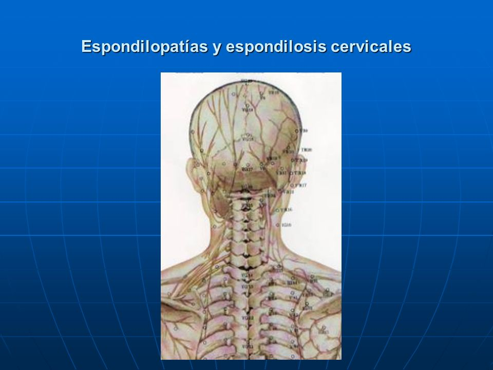 Espondilopatías y espondilosis cervicales
