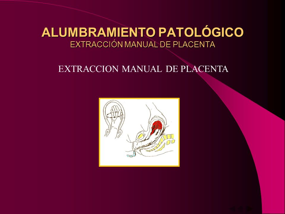 ALUMBRAMIENTO PATOLÓGICO EXTRACCIÓN MANUAL DE PLACENTA EXTRACCION MANUAL DE PLACENTA