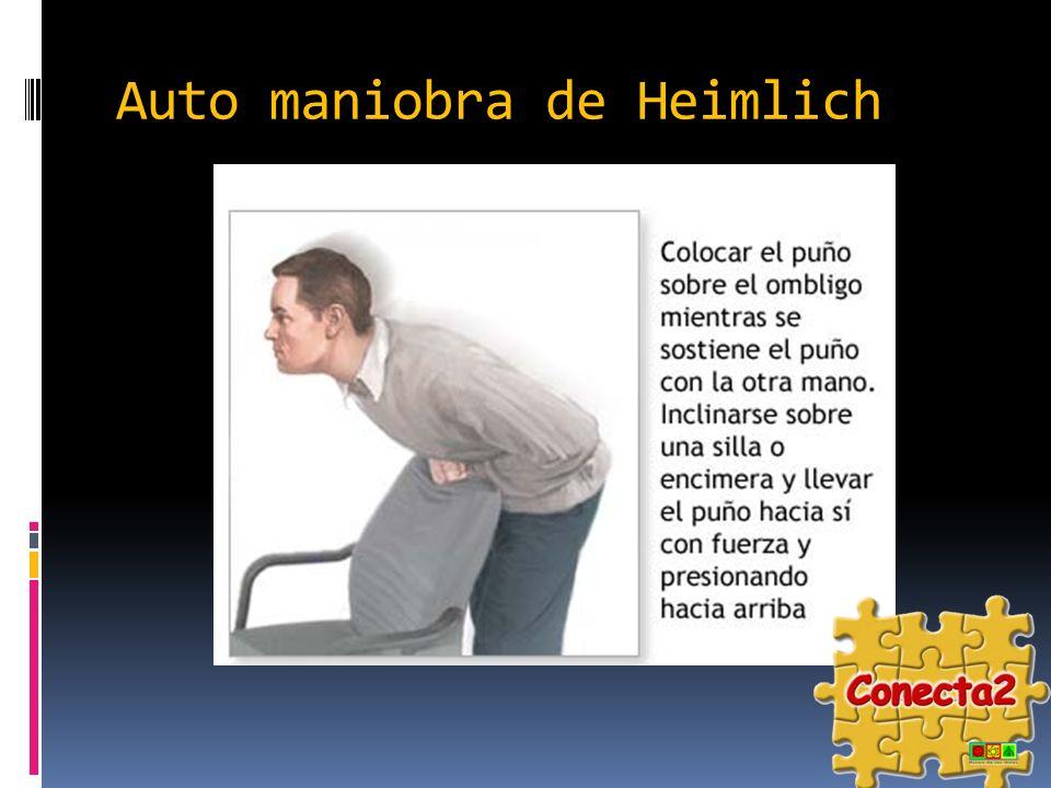Auto maniobra de Heimlich