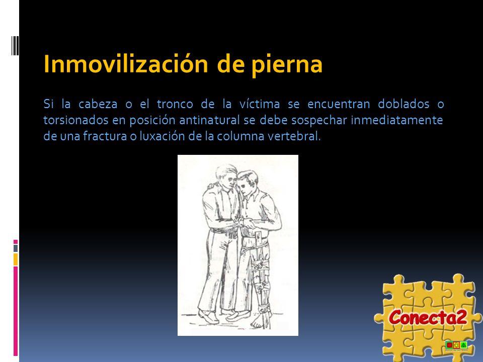 Inmovilización de pierna Si la cabeza o el tronco de la víctima se encuentran doblados o torsionados en posición antinatural se debe sospechar inmedia