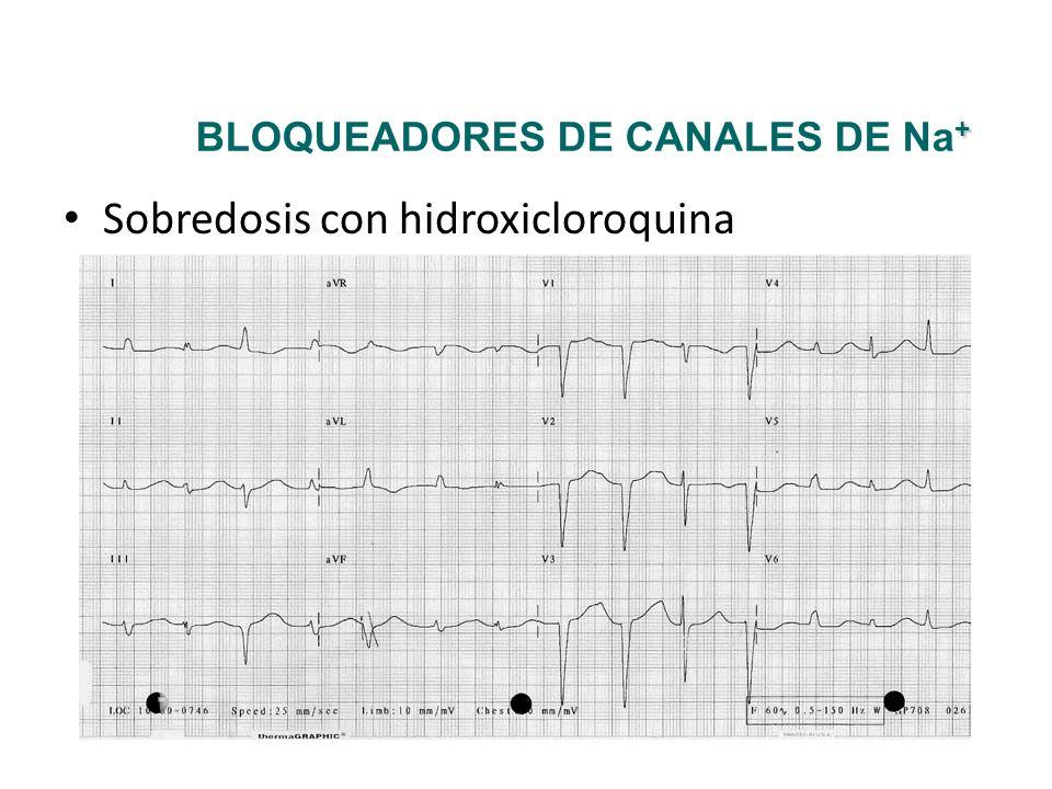 Sobredosis con hidroxicloroquina + BLOQUEADORES DE CANALES DE Na +