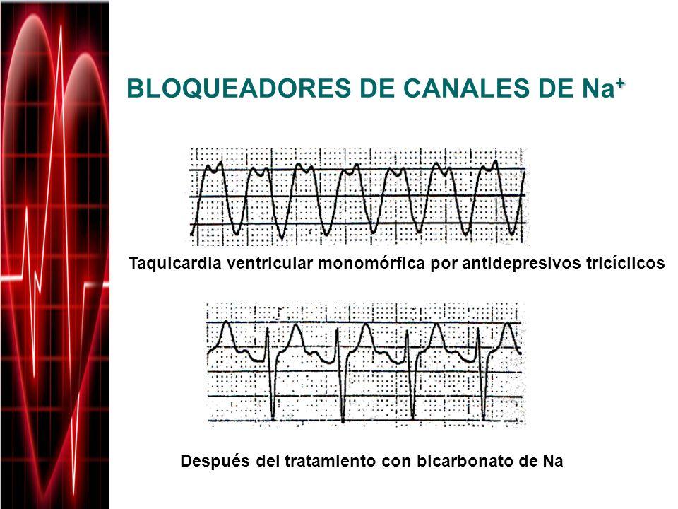 + BLOQUEADORES DE CANALES DE Na + Taquicardia ventricular monomórfica por antidepresivos tricíclicos Después del tratamiento con bicarbonato de Na