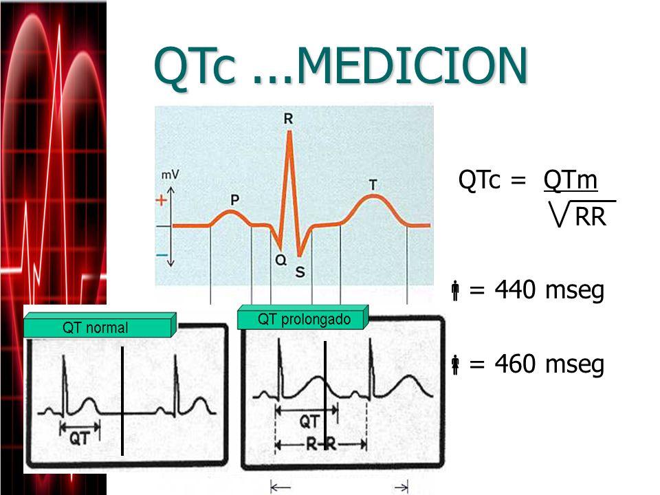 QTc...MEDICION QTc = QTm = 440 mseg = 460 mseg RR