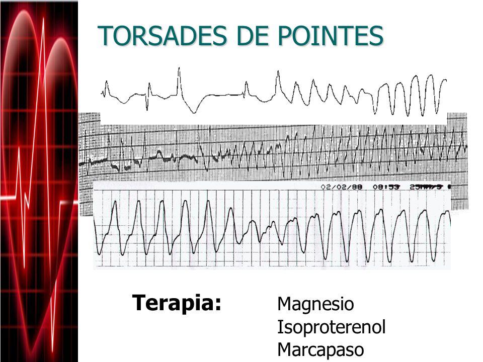 Terapia: Magnesio Isoproterenol Marcapaso TORSADES DE POINTES