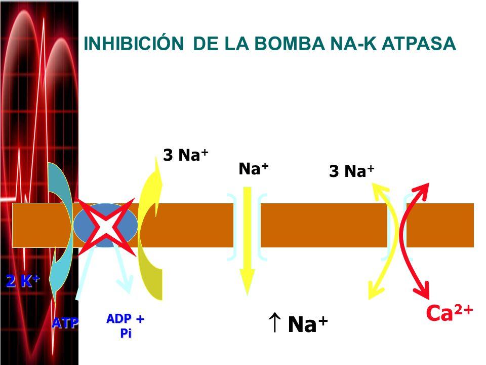 INHIBICIÓN DE LA BOMBA NA-K ATPASA Intracelular Extracelular Na + 3 Na + Ca 2+ 3 Na + 2 K + ATP ADP + Pi