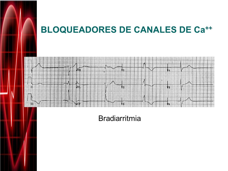 ++ BLOQUEADORES DE CANALES DE Ca ++ Bradiarritmia
