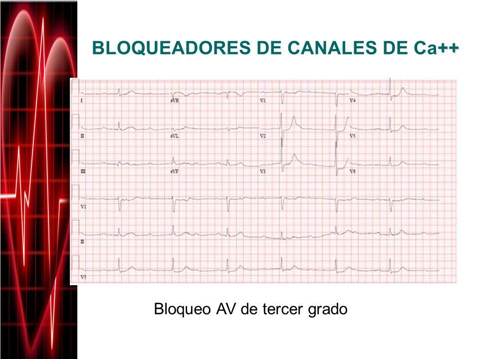 ++ BLOQUEADORES DE CANALES DE Ca++ Bloqueo AV de tercer grado