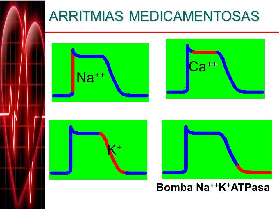 ARRITMIAS MEDICAMENTOSAS ARRITMIAS MEDICAMENTOSAS Na ++ ++ Ca ++ +++ Bomba Na ++ K + ATPasa K+K+