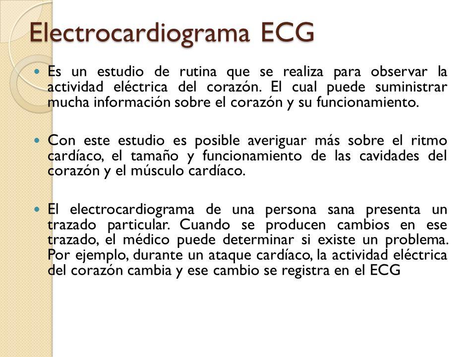 Electrocardiograma ECG Es un estudio de rutina que se realiza para observar la actividad eléctrica del corazón. El cual puede suministrar mucha inform