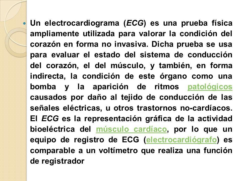 Un electrocardiograma (ECG) es una prueba física ampliamente utilizada para valorar la condición del corazón en forma no invasiva. Dicha prueba se usa