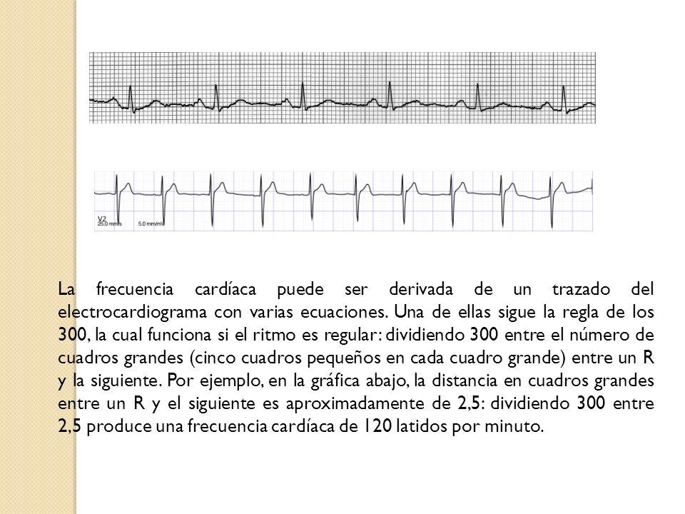 La frecuencia cardíaca puede ser derivada de un trazado del electrocardiograma con varias ecuaciones. Una de ellas sigue la regla de los 300, la cual
