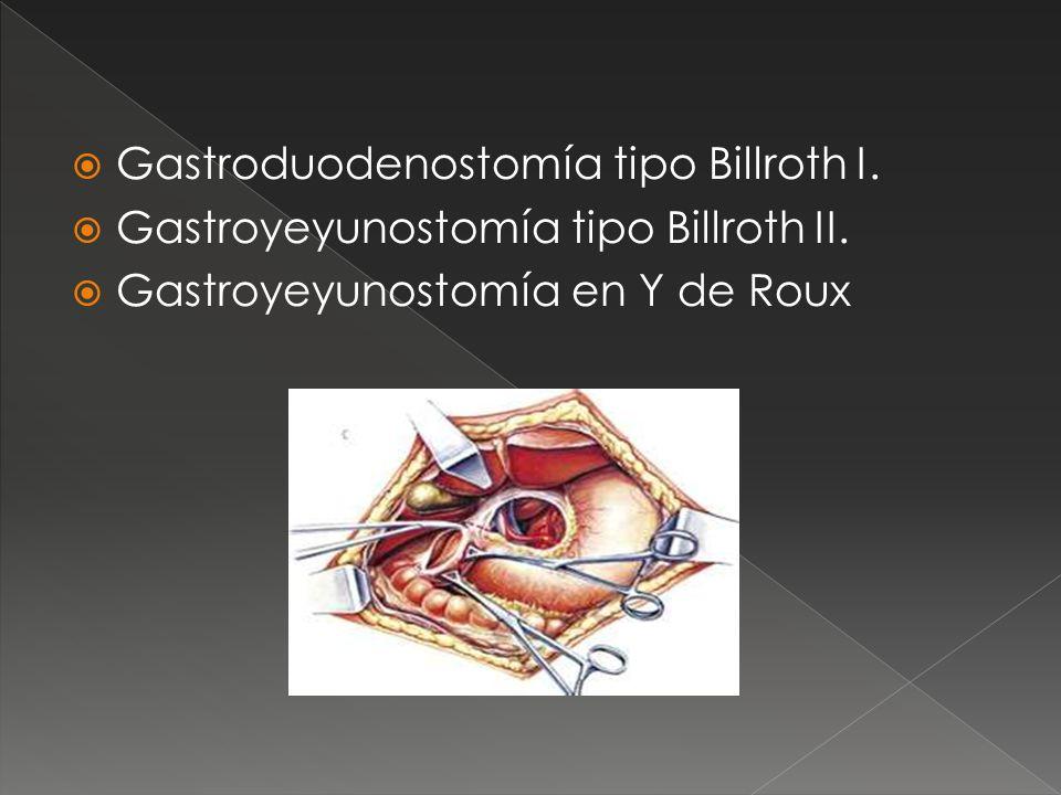 Gastroduodenostomía tipo Billroth I. Gastroyeyunostomía tipo Billroth II. Gastroyeyunostomía en Y de Roux