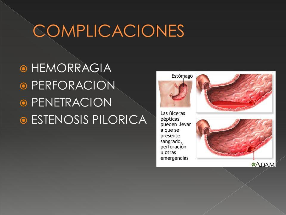 HEMORRAGIA PERFORACION PENETRACION ESTENOSIS PILORICA