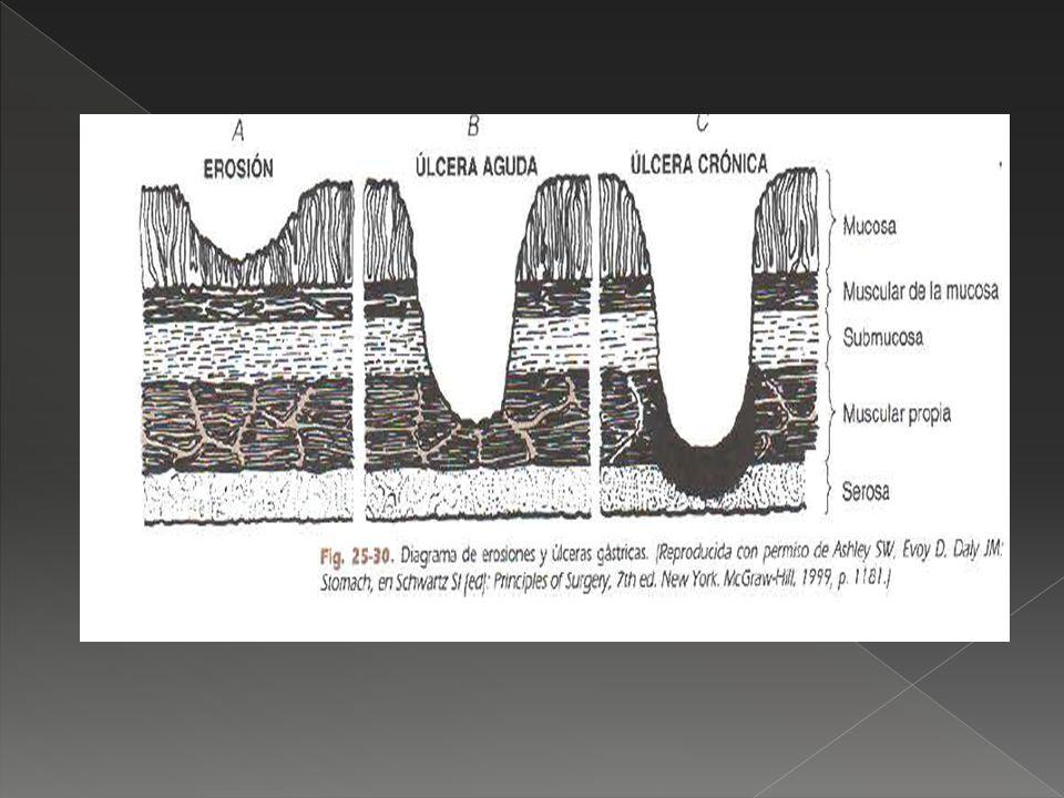 Sangrado, perforación y obstrucción Vagotomía supraselectiva ( UD) Vagotomía troncular bilateral más piloroplastia ( ULCERAS II Y III) Vagotomía troncular bilateral más antrectomía ( > IND de MORTALIDAD) Gastrectomía distal (UG I)
