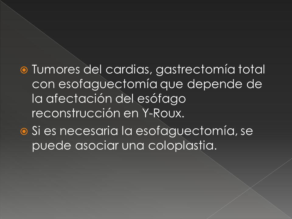Tumores del cardias, gastrectomía total con esofaguectomía que depende de la afectación del esófago reconstrucción en Y-Roux. Si es necesaria la esofa