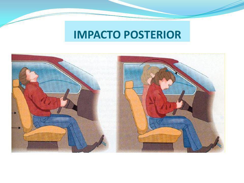IMPACTO POSTERIOR