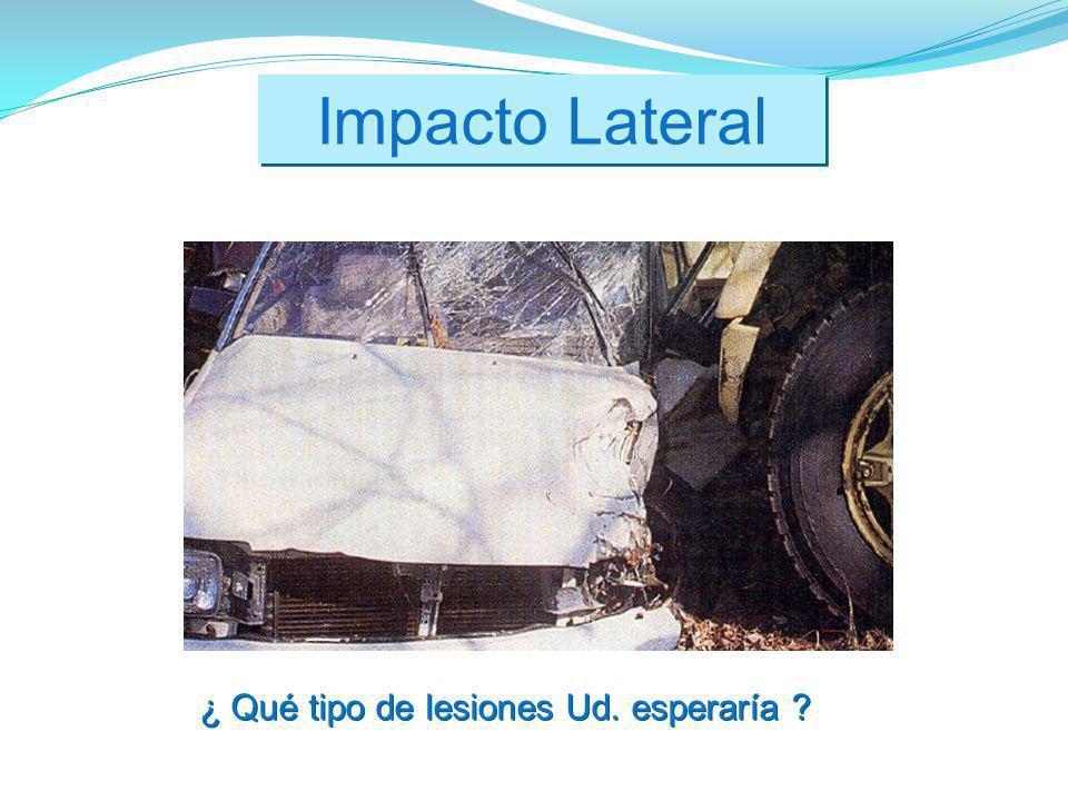 Impacto Lateral ¿ Qué tipo de lesiones Ud. esperaría ?