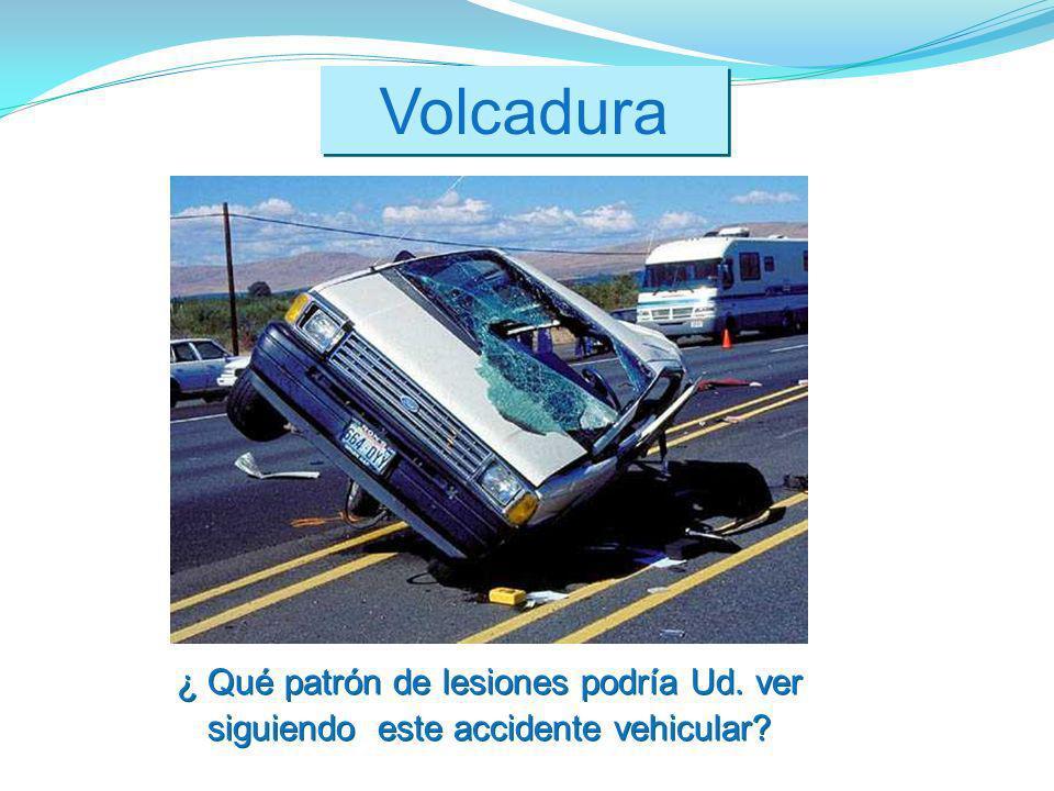 Volcadura ¿ Qué patrón de lesiones podría Ud. ver siguiendo este accidente vehicular?