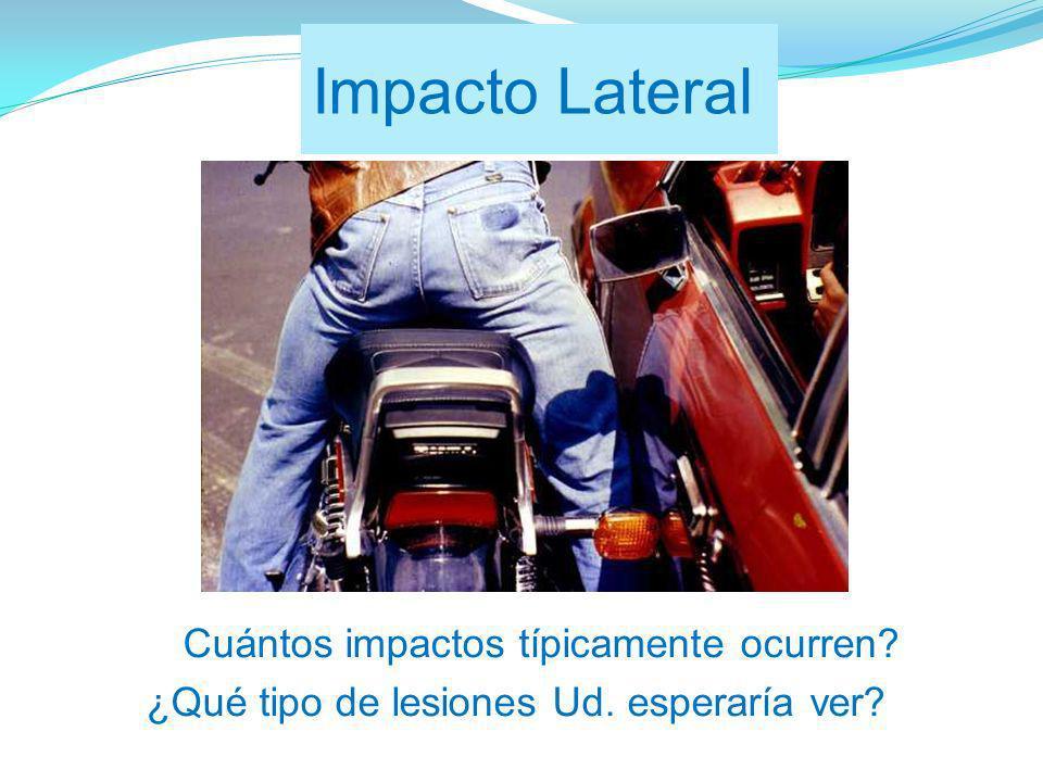 Impacto Lateral ¿Cuántos impactos típicamente ocurren? ¿Qué tipo de lesiones Ud. esperaría ver?