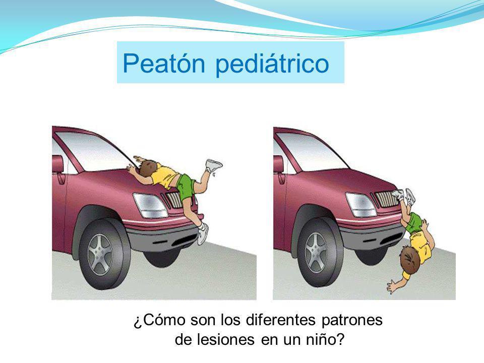 Peatón pediátrico ¿Cómo son los diferentes patrones de lesiones en un niño?
