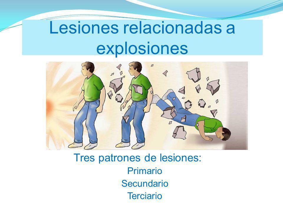 Tres patrones de lesiones: Primario Secundario Terciario Lesiones relacionadas a explosiones