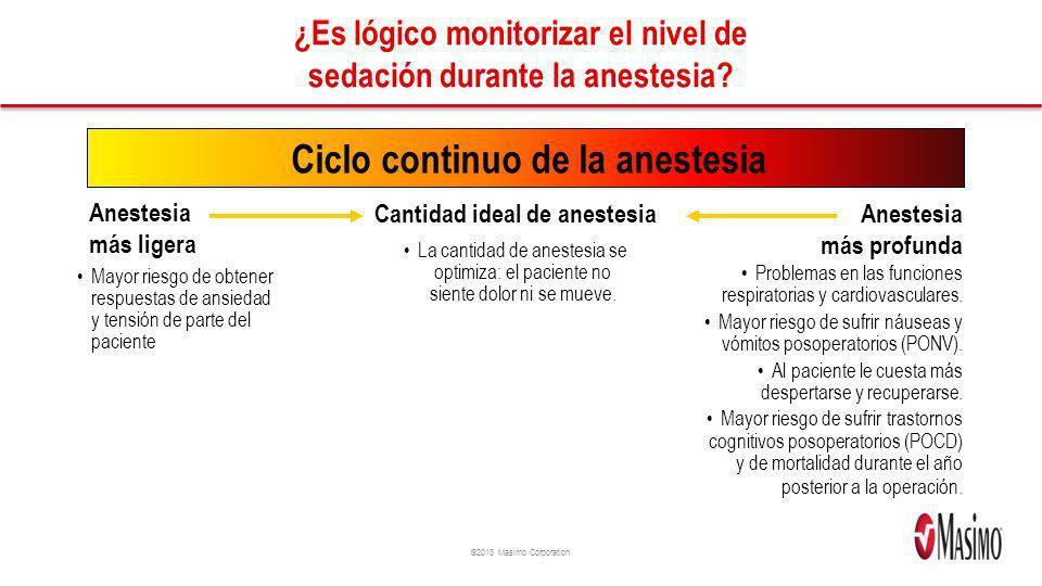 ©2013 Masimo Corporation ¿Es lógico monitorizar el nivel de sedación durante la anestesia? Ciclo continuo de la anestesia Anestesia más ligera Anestes