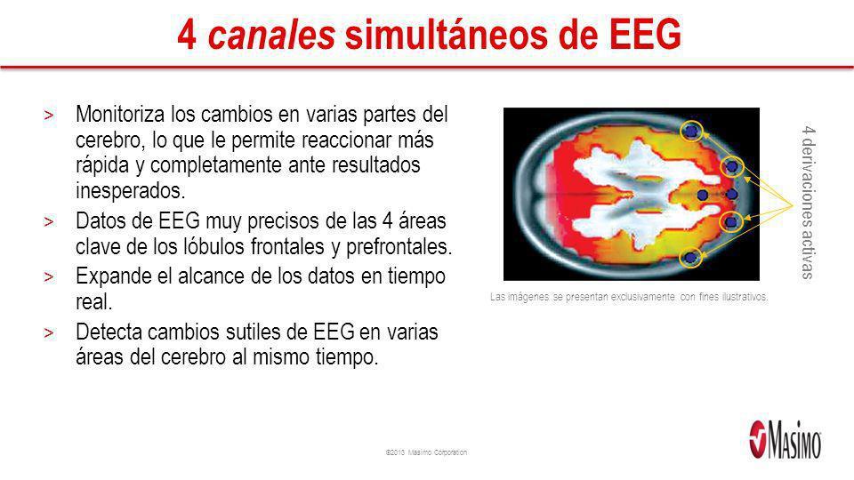 ©2013 Masimo Corporation 4 canales simultáneos de EEG > Monitoriza los cambios en varias partes del cerebro, lo que le permite reaccionar más rápida y