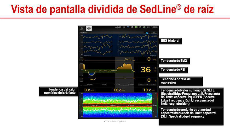 ©2013 Masimo Corporation Vista de pantalla dividida de SedLine ® de raíz EEG bilateral Tendencia de EMG Tendencia de PSI Tendencia de tasa de supresión Tendencia del valor numérico del artefacto Tendencia de conjunto de densidad espectral/frecuencia del límite espectral (SEF, Spectral Edge Frequency) Tendencia del valor numérico de SEFL (Spectral Edge Frequency Left, Frecuencia del límite espectral izq.)/SEFR (Spectral Edge Frequency Right, Frecuencia del límite espectral der.)