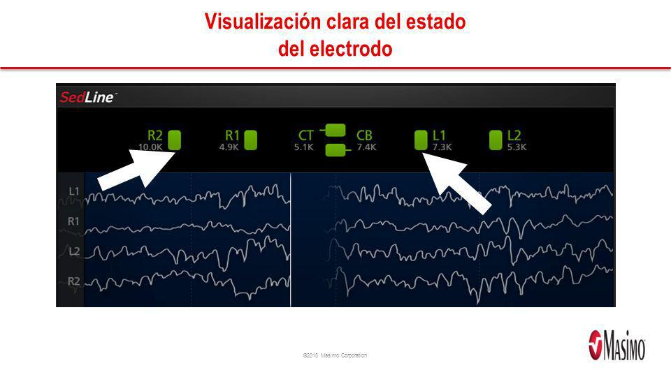 ©2013 Masimo Corporation Visualización clara del estado del electrodo