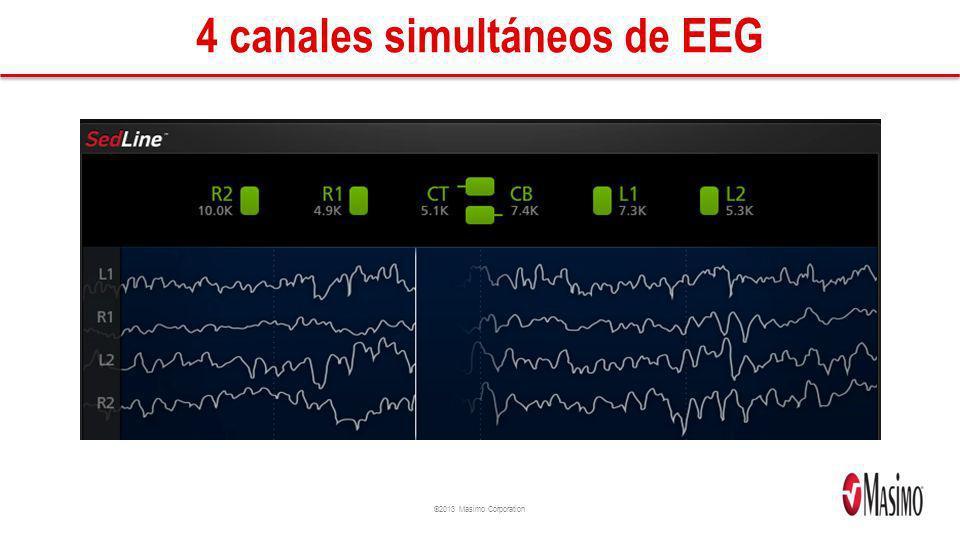 ©2013 Masimo Corporation 4 canales simultáneos de EEG