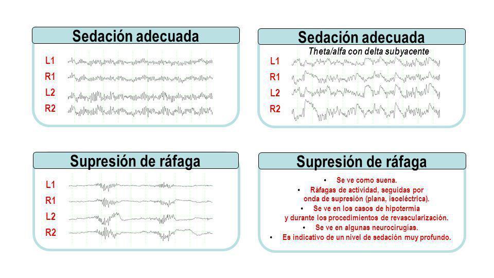 Se ve como suena. Ráfagas de actividad, seguidas por onda de supresión (plana, isoeléctrica). Se ve en los casos de hipotermia y durante los procedimi