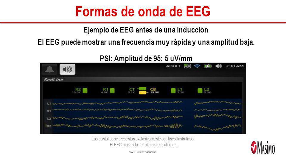 ©2013 Masimo Corporation Formas de onda de EEG Ejemplo de EEG antes de una inducción El EEG puede mostrar una frecuencia muy rápida y una amplitud baja.