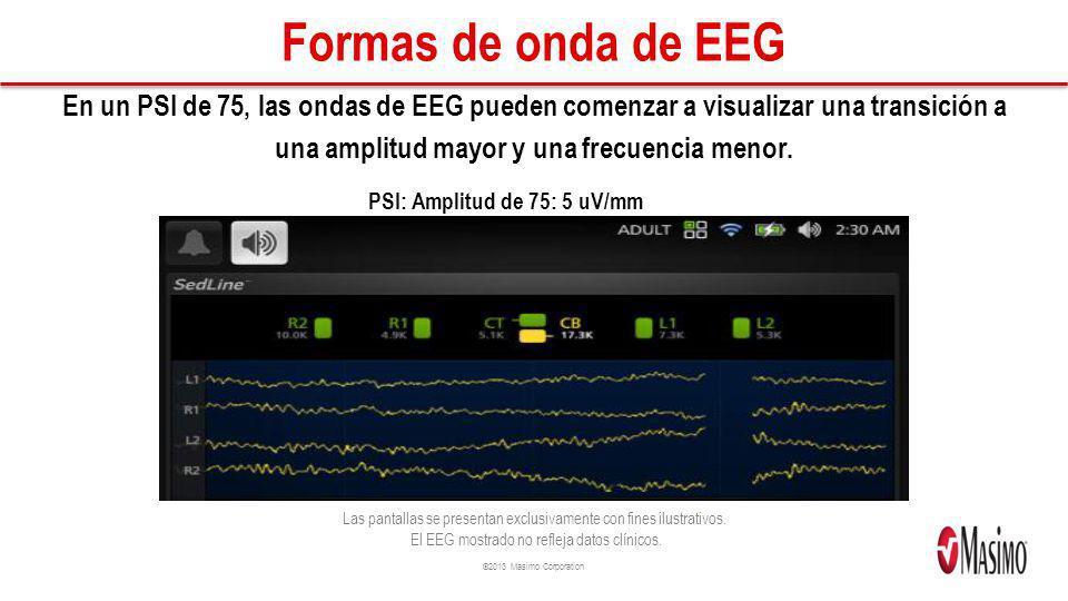 ©2013 Masimo Corporation Formas de onda de EEG En un PSI de 75, las ondas de EEG pueden comenzar a visualizar una transición a una amplitud mayor y un