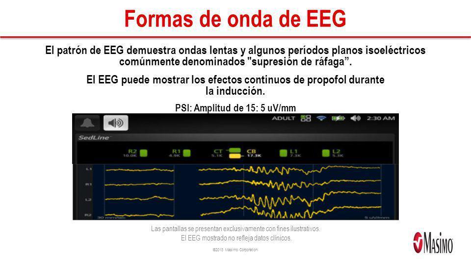 ©2013 Masimo Corporation Formas de onda de EEG El patrón de EEG demuestra ondas lentas y algunos períodos planos isoeléctricos comúnmente denominados supresión de ráfaga.