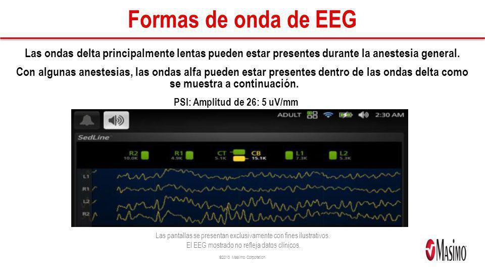 ©2013 Masimo Corporation Formas de onda de EEG Las ondas delta principalmente lentas pueden estar presentes durante la anestesia general. Con algunas