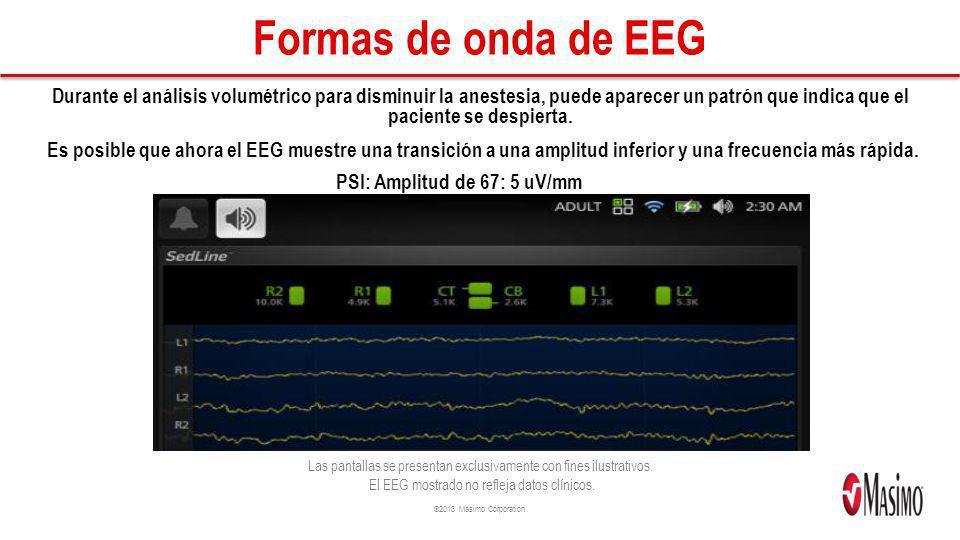 ©2013 Masimo Corporation Formas de onda de EEG Durante el análisis volumétrico para disminuir la anestesia, puede aparecer un patrón que indica que el