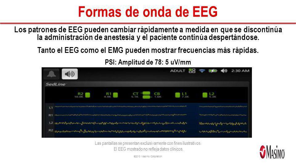 ©2013 Masimo Corporation Formas de onda de EEG Los patrones de EEG pueden cambiar rápidamente a medida en que se discontinúa la administración de anes