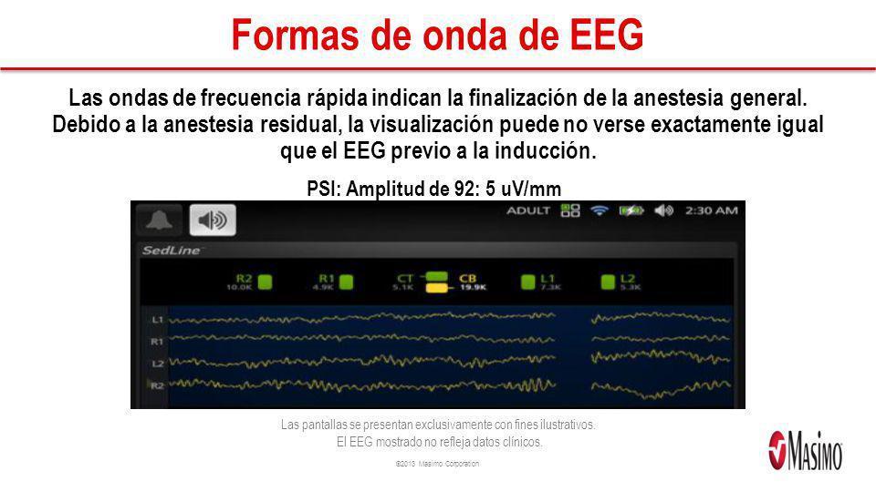 ©2013 Masimo Corporation Formas de onda de EEG Las ondas de frecuencia rápida indican la finalización de la anestesia general. Debido a la anestesia r