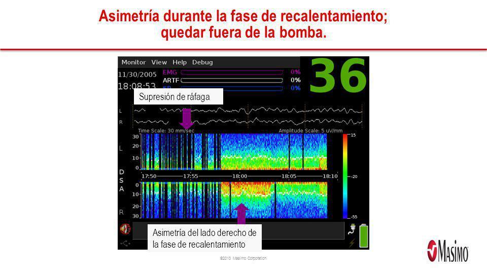 ©2013 Masimo Corporation Asimetría durante la fase de recalentamiento; quedar fuera de la bomba. Supresión de ráfaga Asimetría del lado derecho de la